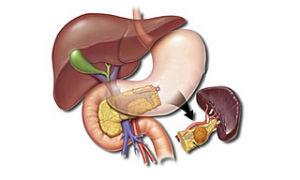 Симптомы и причины воспаления поджелудочной железы у женщин