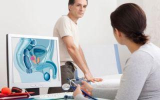 Процесс проведения процедуры узи предстательной железы