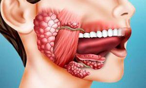 Камень слюнной железы: особенности возникновения заболевания, ключевые аспекты терапии
