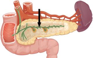 Протоки в поджелудочной железе: функции, аномалии строения