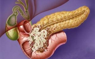 Причины, симптомы и лечение опухоли поджелудочной железы