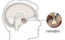 Симптомы отклонений в гипофизе головного мозга
