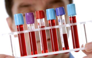 Анализы на женские гормоны – щитовидная железа, когда и как сдавать анализы