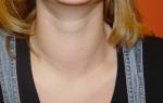 Как определить узловой зоб щитовидной железы и возможные пути лечения