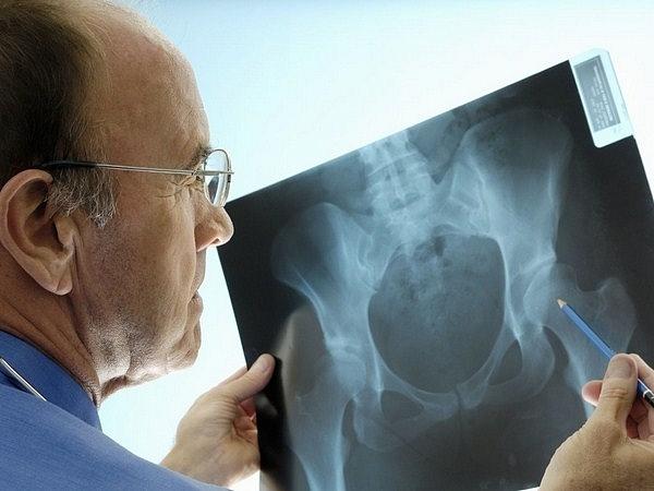рак предстательной железы симптомы и лечение