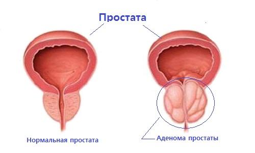После операции аденомы простаты повторная операция