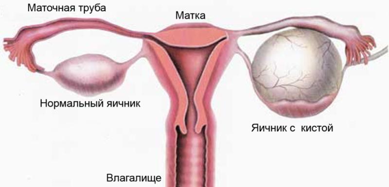 Чего девушке во время секса начало тошнить и болеть яичники