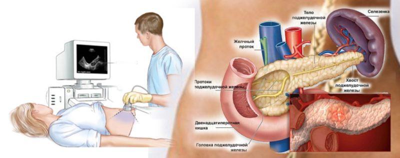 хронический холецистопанкреатит