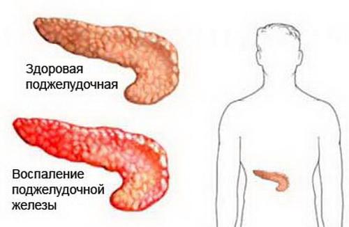 поджелудочная железа обострение