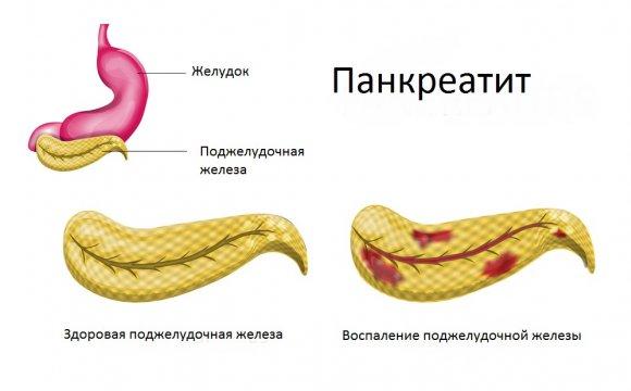 симптомы болезни поджелудочной железы у женщин