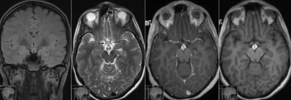 Аденома гипофизы - типы, симптомы, способы лечения