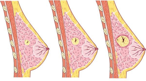 Мастопатия молочной железы: причины, симптомы, диагностика и лечение