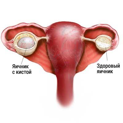 киста яичника симптомы у женщин