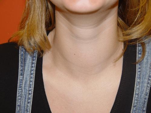 щитовидка признаки заболевания у женщин