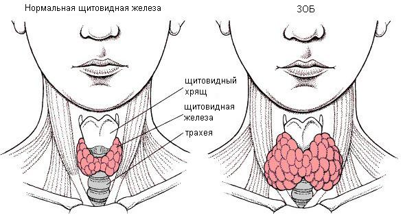 Пятна при воспалении щитовидной железы диагностика и лечение