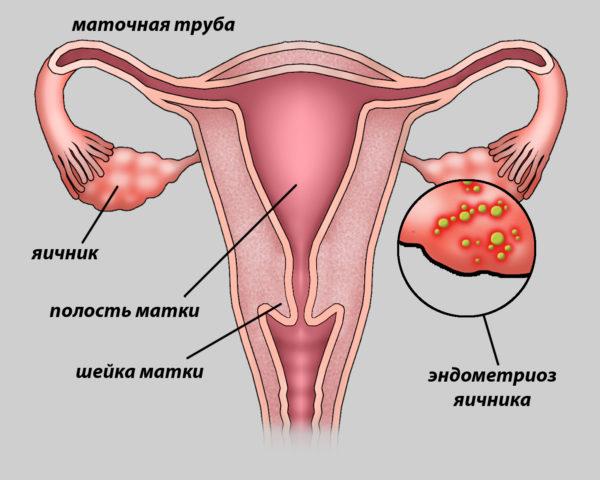 болит правый яичник
