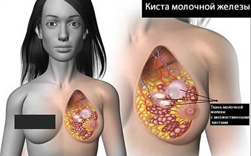 фото киста молочной железы