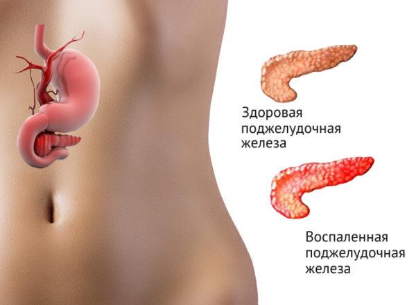как проверить поджелудочную железу