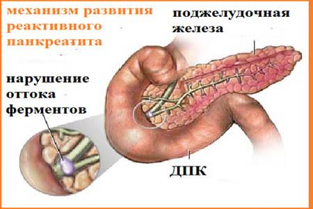 симптомы панкреатита поджелудочной железы