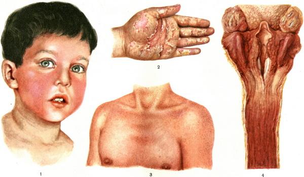 вилочковая железа у детей