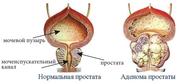 предстательная железа размеры норма