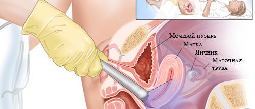 Гиперплазия эндометрия, рак эндометрия - причины, течение болезни