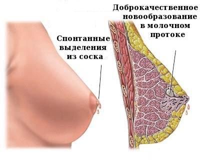 доброкачественная опухоль молочной железы