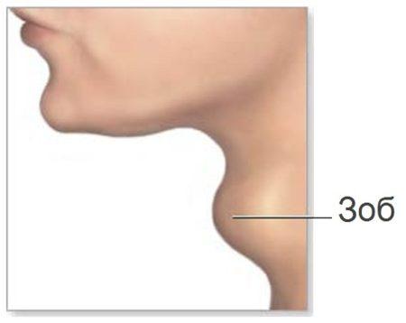 гипотиреоз щитовидной железы что это такое