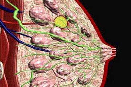 фиброаденоматоз молочной железы что это такое
