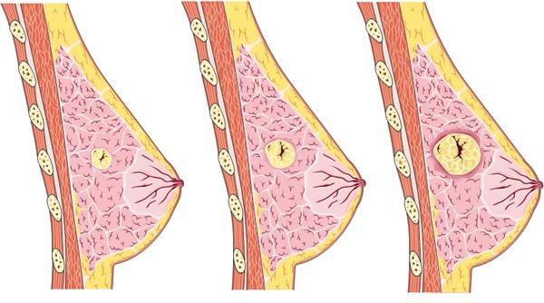 болит грудная железа причины