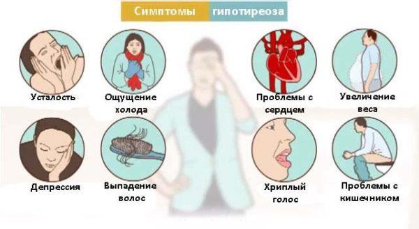 гипотиреоз симптомы