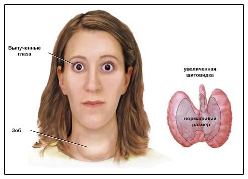 тест Кто болезнь грейвса что это боль