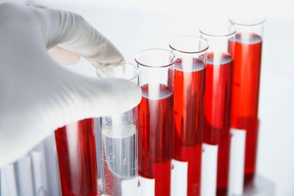 анализ на гормоны щитовидной железы расшифровка