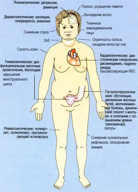 тиреоидит симптомы