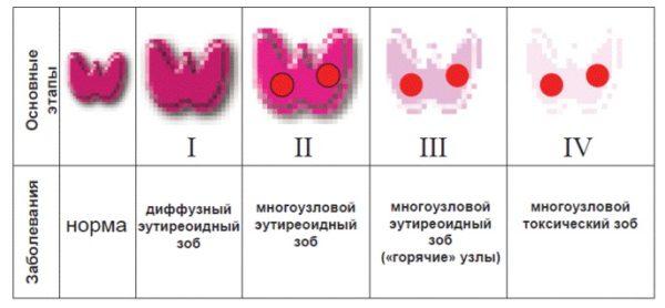 Узлы щитовидной железы у женщин  причины симптомы и