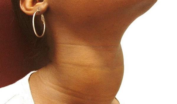 аит щитовидной железы что это такое