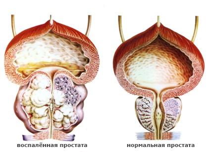лечение аденомы предстательной железы в домашних условиях