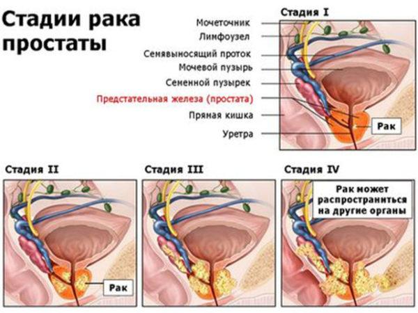 Лечение рака предстательной железы народными средствами