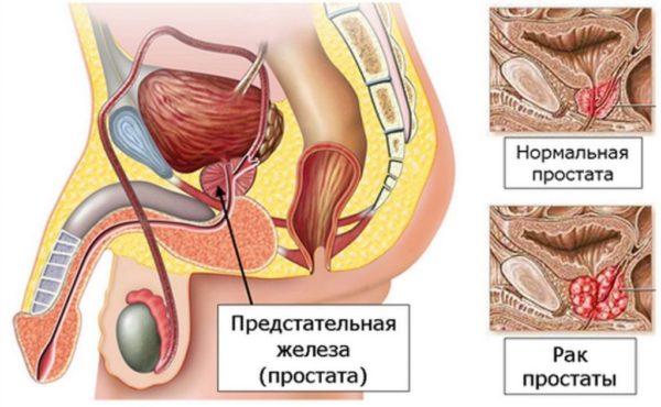 В помощь при лечении хронического простатита