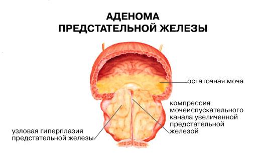 лечить аденому без операции