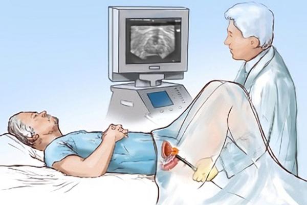 Трансректальное УЗИ предстательной железы