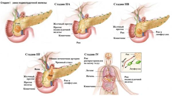 рак поджелудочной железы классификация