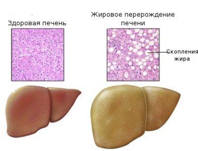 Жировая инфильтрация поджелудочной железы