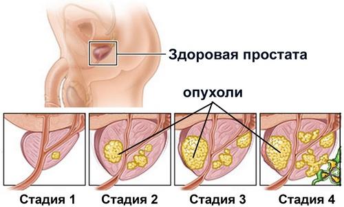Лечение предстательной железы народными средствами