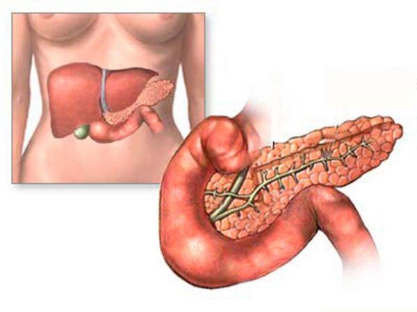 Можно ли умереть от поджелудочной железы