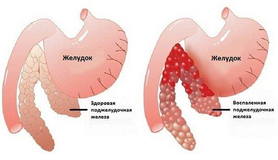 Диета при воспалении поджелудочной железы