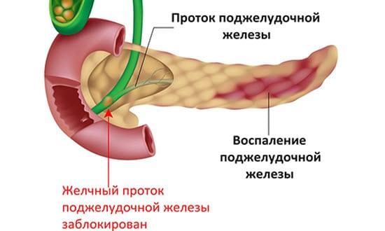 Острое воспаление панкреатита
