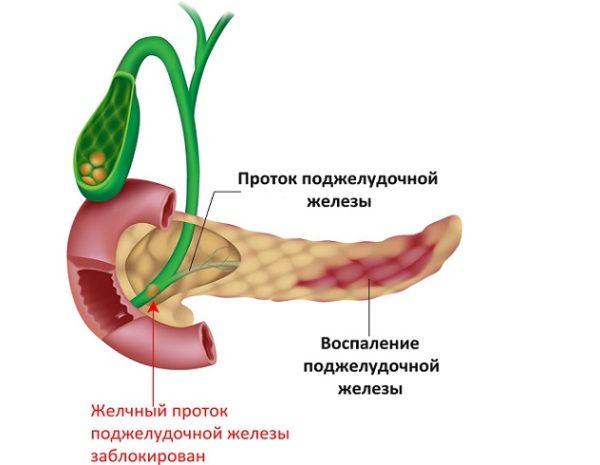 Сливы при панкреатите