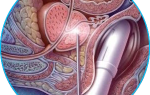 Биопсия простаты: все о том, как проводят процедуру