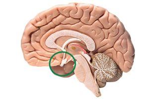 Клиническая картина и симптомы микроаденомы гипофиза